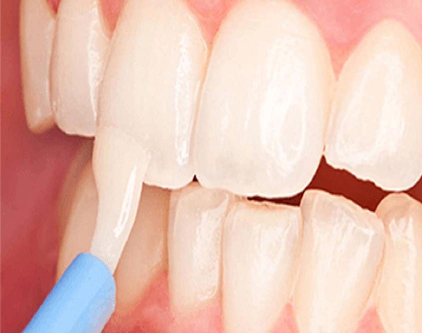 Dental Clinic Mernda