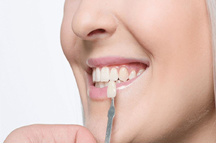 What is Fluoride Treatment?